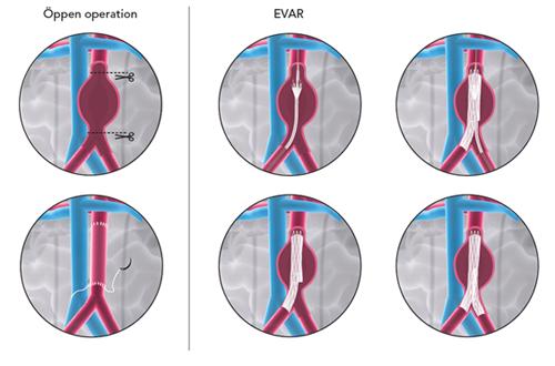 Endovaskulär Behandling Av Bukaortaaneurysm Kateterburen