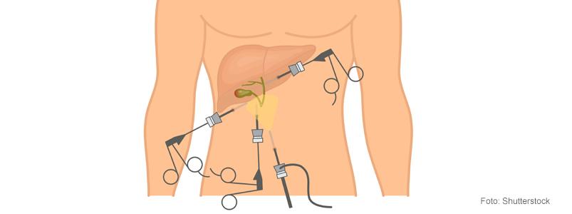 gallsten efter operation